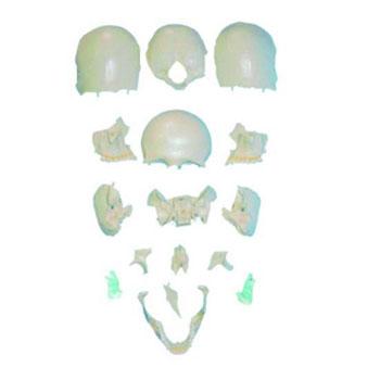 分离头颅骨散骨模型KAR/11117-2