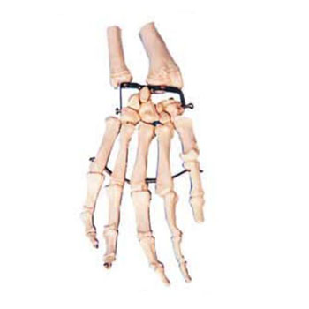 手掌骨模型KAR/11126