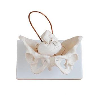 女性盆骨帶胎兒頭顱骨模型KAR/11128-1